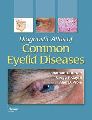 Diagnostic Atlas of Common Eyelid Diseases Informa Healthcare Alan D. Proia, Gregg S. Gayre, Jonathan J. Dutton