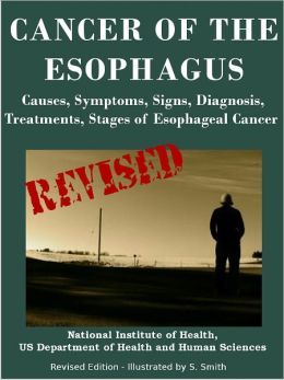 CANCER OF THE ESOPHAGUS: Causes, Symptoms, Signs, Diagnosis, Treatments, Stages of Esophageal Cancer - Revised Edition - Illustrated by S. Smith