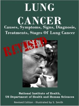 LUNG CANCER: Causes, Symptoms, Signs, Diagnosis, Treatments, Stages Of Lung Cancer - Revised Edition - Illustrated by S. Smith