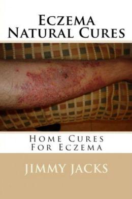 Eczema Natural Cures