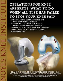 Operations for Knee Arthritis: What To Do When All Else Has Failed To Stop Your Knee Pain