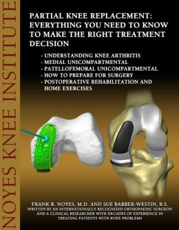 Partial Knee Replacement: Everything You Need to Know to Make the Right Treatment Decision: Understanding knee arthritis - Medial unicompartmental - Patellofemoral unicompartmental - How to prepare fo