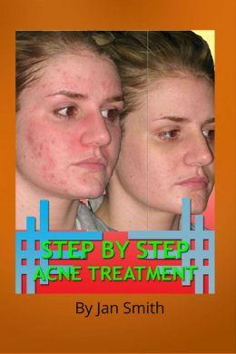 Step By Step Acne Treatment