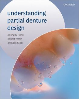 Understanding Partial Denture Design