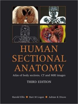 Human Sectional Anatomy: Atlas of body sections, CT and MRI images, Third Edition