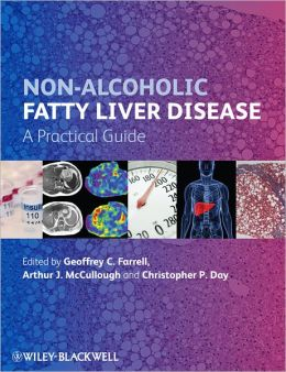 Non-Alcoholic Fatty Liver Disease: A Practical Guide