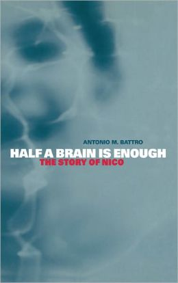 Half a Brain is Enough: The Story of Nico