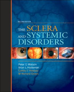 Sclera & Systemic Disorders