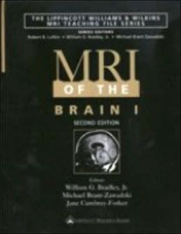 MRI of the Brain 1