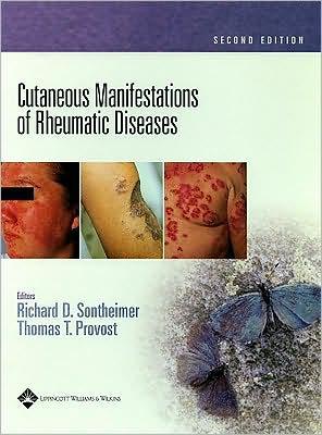 Jungle book downloads Cutaneous Manifestations of Rheumatic Diseases