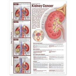 Understanding Kidney Cancer Anatomical Chart