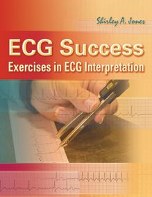 ECG Success: Exercises in ECG Interpretation