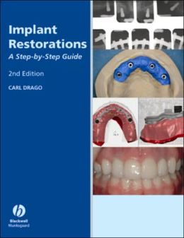 Implant Restoration Solutions: A Step-by-Step Guide