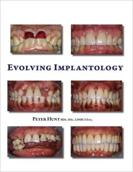 Evolving Implantology