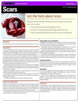 Scars (Quamut)