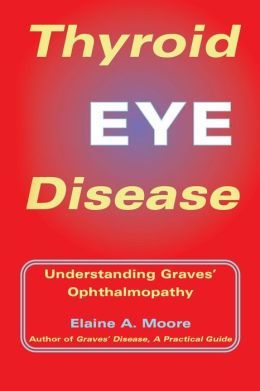 Thyroid Eye Disease: Understanding Graves' Ophthalmopathy