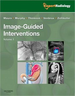 Image-Guided Intervention