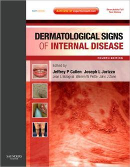 Dermatological Signs of Internal Disease: Expert Consult - Online and Print