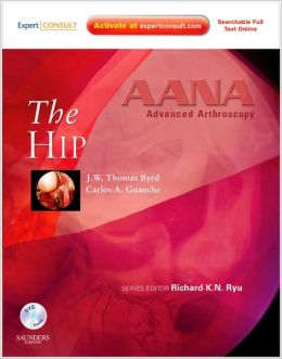 AANA Advanced Arthroscopy: The Hip: Expert Consult: Online, Print and DVD