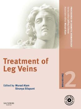 Procedures in Cosmetic Dermatology Series: Treatment of Leg Veins