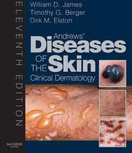 Andrew's Diseases of the Skin: Clinical Dermatology