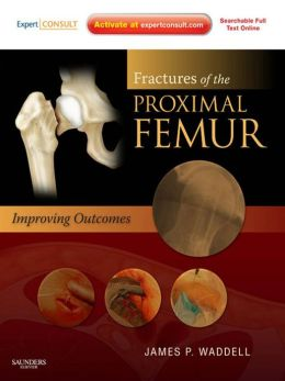 Fractures of the Proximal Femur: Improving Outcomes: Expert Consult