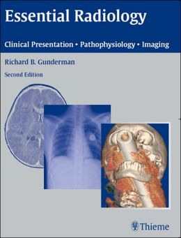 Essential Radiology: Clinical Presentation ? Pathophysiology ? Imaging