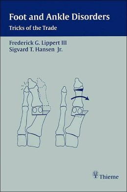 Foot and Ankle Disorders: Tricks of the Trade