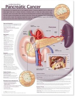 Understanding Pancreatic Cancer Anatomical Chart