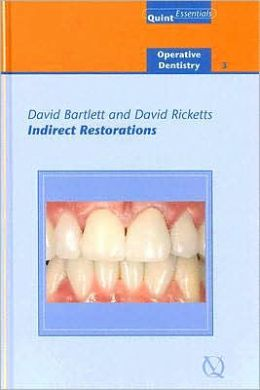 Indirect Restorations