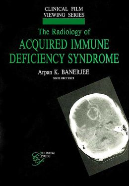 The Radiology of Acquired Immune Deficiency Syndrome (Clinical Film Viewing Series)