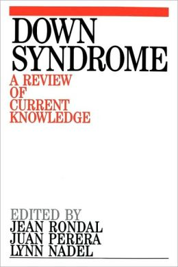 Down Syndrome: A Review of Current Knowledge