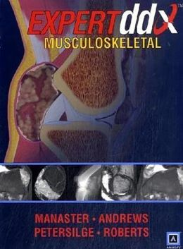 EXPERTddx: Musculoskeletal: Published by Amirsys