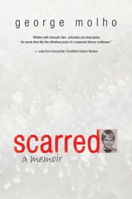 Scarred: A Memoir
