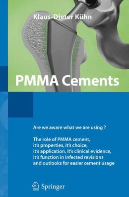 PMMA Cements: Up-to-Date Comparison of Physical and Chemical Properties of Commercial Materials