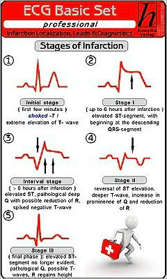 ECG Basic Set, Professional: Localization, Leads & Diagnostics, ECG Analysis Instructions, Cardiac Arrhythmia, ECG Ruler